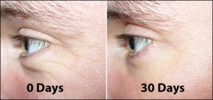 Elite Eye Serum claims these effects